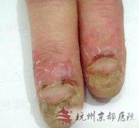 灰指甲的分类有哪些