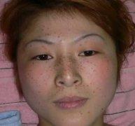 日常生活中脸上长雀斑的原因是什么